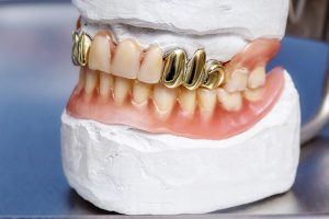 Cremation and Dental Fillings