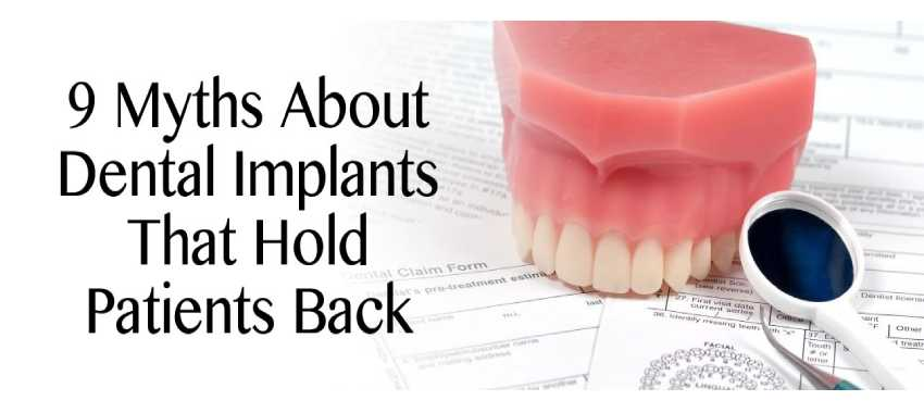 9 Myths About Dental Implants in California That Hold Patients Back